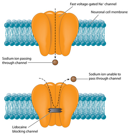 Sodium channel blocked due to anaesthetic drug action.