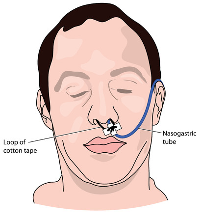 A nasal bridle attaching a nasogastric tube to the nasal septum to prevent accidental pullout. Ilustracja