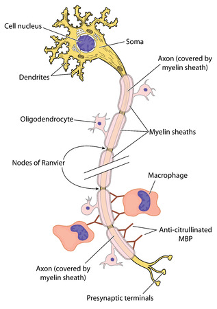 Myelinated nerve in multiple sclerosis, showing action of antibodies to myelin basic protein and macrophage action. Created in Adobe Illustrator. EPS 10. Illustration