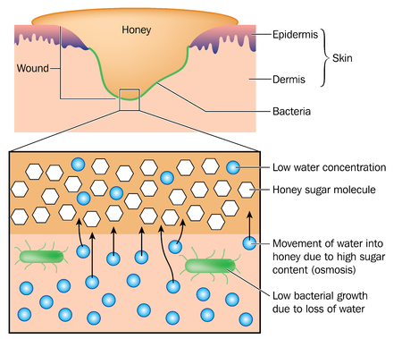 The action of honey on bacterial growth, reducing wound infection by osmosis.  Illustration
