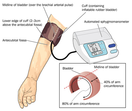 Blood pressure cuff on arm over the brachial pulse attached to automated sphygmomanometer and details of cuff dimensions  Illustration