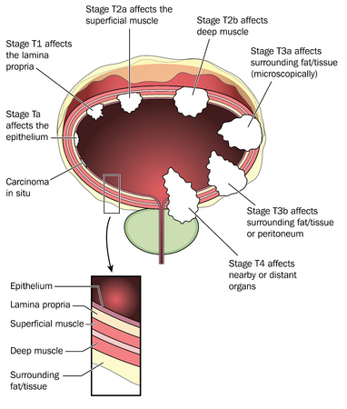 Stages of bladder cancer, from carcinoma in situ, to stage T4, including detail of bladder wall anatomy. Created in Adobe Illustrator. Contains transparent objects and gradient fills. EPS 10.