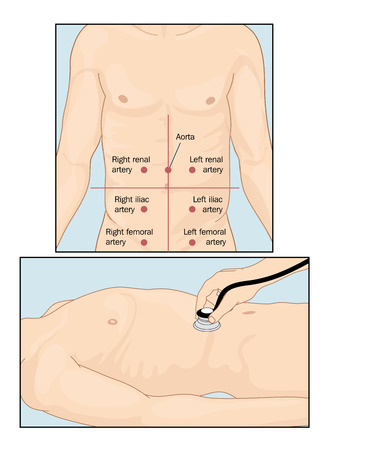 auscultation: Sites of abdominal vascular sounds when performing abdominal auscultation with a stethoscope. Created in Adobe Illustrator.  EPS 10. Illustration