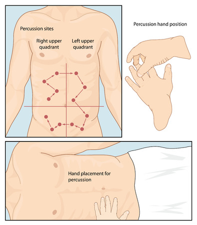 medical exam: Hand position and placement for abdominal percussion exam, showing sites for percussion in the abdominal quadrants. Created in Adobe Illustrator. Contains transparent objects and clipping masks. EPS 10.