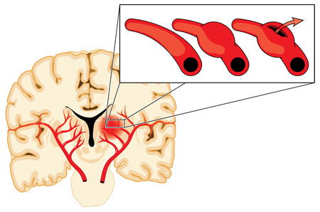 stroke: Blood vessels in the brain, bulging and rupturing due to an aneurysm, leaking blood into the cerebral hemisphere causing a stroke.