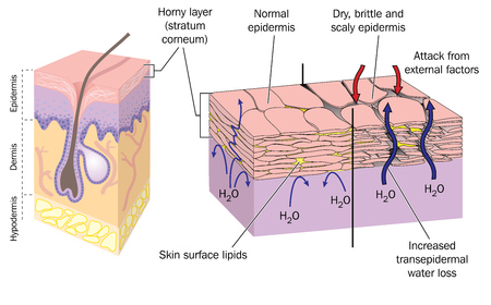 dries: Section through skin showing normal epidermis and skin surface structure resulting in water loss and dry, brittle, scaly skin.