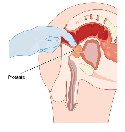 Rectal prostate examination, checking for prostatic enlargement via the rectal wall.