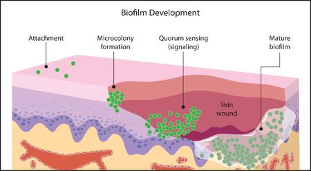 Groei van een bacteriële biofilm op een huid wond, van de eerste bevestiging door middel microkolonie vorming, signalering en volwassen biofilm.