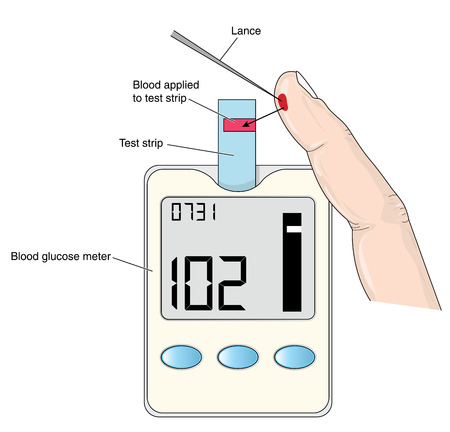 glucose: Finger prick blood test for glucose monitoring. Created in Adobe Illustrator.  Contains gradient objects.