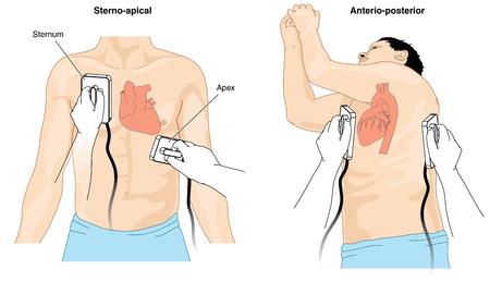 ataque al corazón: La colocación de electrodos de desfibrilador paletas para llevar a cabo la cardioversión en un paciente con arritmia cardiaca. Creado en Adobe Illustrator. Contiene los objetos transparentes. 10 EPS. Vectores