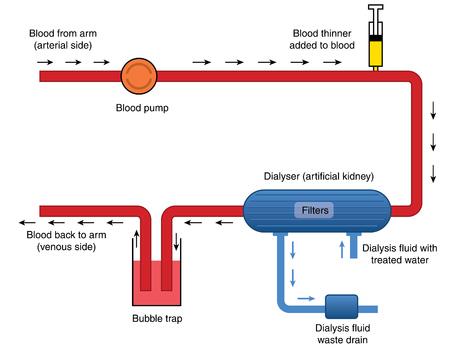 blood flow: Il flusso di sangue attraverso macchine per la dialisi, da sangue arterioso, attraverso la pompa, il filtro, delle bolle e ritorno alla circolazione venosa. Creato in Adobe Illustrator. Contiene oggetti trasparenti e riempimenti sfumati. EPS 10.
