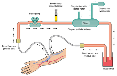 Blood flow through kidney dialysis machine, from arterial blood, through the pump, filter, bubble trap and return flow to the venous circulation. Created in Adobe Illustrator.  Contains transparent objects and gradient fills. EPS 10.