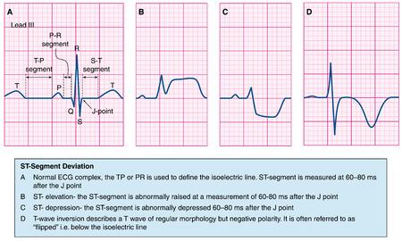Normaal hart ecg trace vergeleken met abnormale sporen - ST elevatie, st depressie en T-wave depressie. Gemaakt in Adobe Illustrator. EPS-10. Stock Illustratie