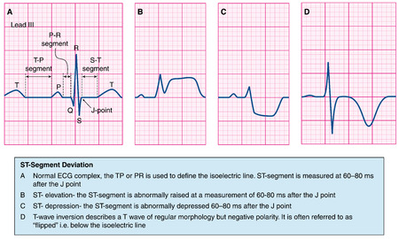 pr: Normal heart ecg trace compared to abnormal traces -- st elevation, st depression and T-wave depression. Created in Adobe Illustrator.  EPS 10. Illustration