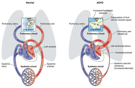 alveolos pulmonares: Edema pulmonar causado por insuficiencia cardíaca en el lado izquierdo, lo que resulta en la acumulación de líquido en los espacios alveolares. Creado en Adobe Illustrator. 10 EPS.