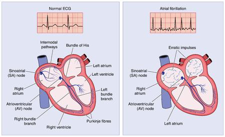 Dessin du système de conduction électrique du c?ur montrant une activité normale et impulsions erratiques dans la fibrillation auriculaire.
