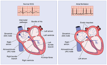ventricle: Drawing of the heart electrical conduction system showing normal activity and erratic impulses in atrial fibrillation.