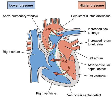 ventricle: Los defectos cardiacos cong�nitos que resultan en el flujo anormal de sangre a trav�s del coraz�n y los pulmones, lo que resulta en el s�ndrome Eisenmengers.