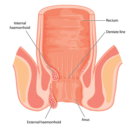 sphincter: Cross section of the rectum and anal canal, showing position and structure of internal haemorrhoids. Created in Adobe Illustrator.  Contains transparent objects.
