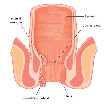 Sección transversal del recto y el canal anal, que muestra la posición y la estructura de las hemorroides internas. Creado en Adobe Illustrator. Contiene los objetos transparentes. Foto de archivo - 46935707