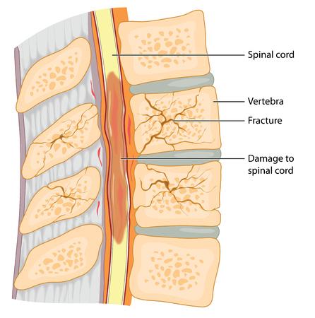 medula espinal: sección transversal a través de la columna vertebral que muestra vértebras fracturadas y el daño a la médula espinal
