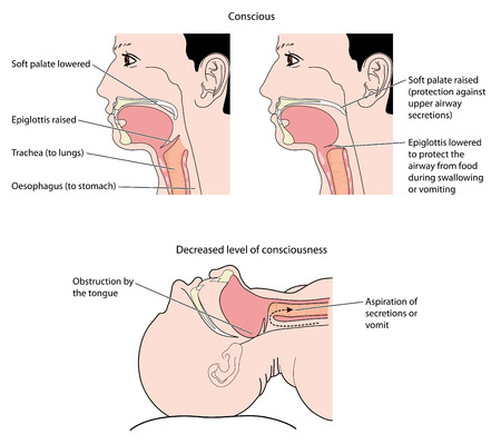 Cross section of the mouth and throat, showing action of the epiglottis during normal swallowing and aspiration of vomit in the unconscious. Created in Adobe Illustrator.  EPS 10. 일러스트