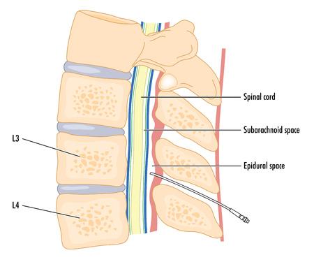 척수: Cross section of the spine showing the spinal cord and the epidural space with a catheter in situ.