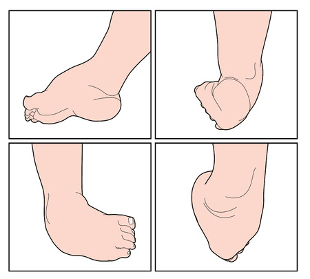 The right foot of a child showing the congenital  abnormality called clubfoot or club foot.