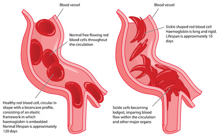 Normal red blood cells and sickle cells in a blood vessel  showing disrupted blood flow.