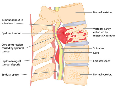 척추 및 척수의 기본 및 보조 종양, 보여주는 코드 압축 및 추체 붕괴.