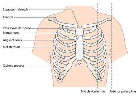 sternum: The ribs, sternum and clavicle, showing the mid clavicular line and the anterior axillary line. Created in Adobe Illustrator. EPS 10. Illustration