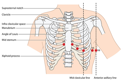 ekg: Placement of ecg ekg leads showing the ribs and sternum, the mid clavicular line and the anterior axillary line. Created in Adobe Illustrator.  Contains transparent objects. EPS 10. Illustration