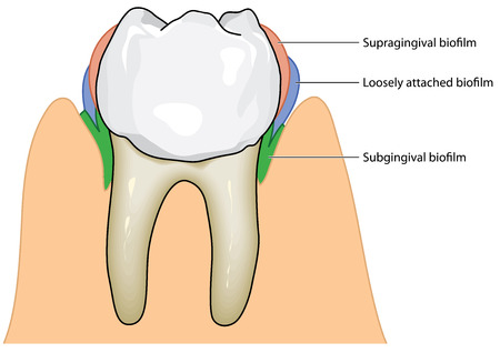 molar: Biofilm formation on a molar tooth, covering the enamel and deep to the subgingival crown root junction.