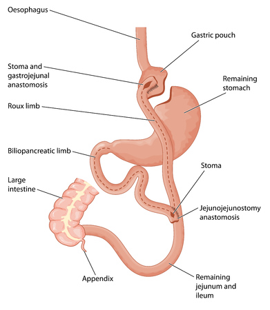 Roux-en-Y gastric bypass, showing a gastric pouch and gastrojejunal anastomosis.