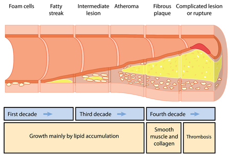 Development of an atheromatous plaque in an artery over four decades.