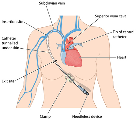 superior: Central venous catheter and needleless device tunnelled under the skin and entering the superior vena cava via the subclavian vein.  Illustration