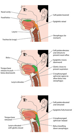 oesophagus: The actions involved in the swallowing of a food bolus, showing how the epiglottis is used to prevent inhalation of food.