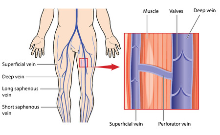 Leg veins, with detail of deep and superficial veins in the leg muscle, connected by a perforator vein. Created in Adobe Illustrator.  Contains transparent objects. EPS 10.