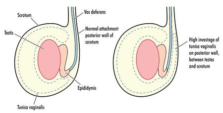 Testicle with high tunica vaginalis, a predisposing factor in testicular torsion.  Ilustração