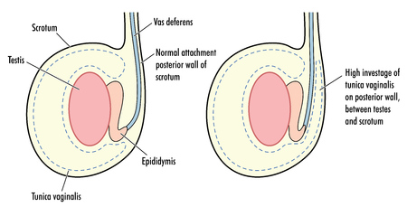 testes: Testicle with high tunica vaginalis, a predisposing factor in testicular torsion.  Illustration
