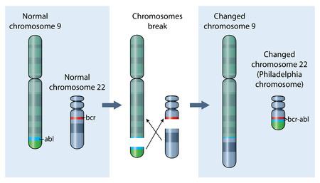 만성 골수성 백혈병의 한 요인 인 22 번 염색체의 유전 적 이상. Adobe Illustrator에서 작성되었습니다. EPS 10