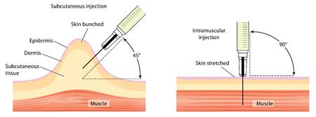 inyeccion intramuscular: Diferentes métodos para la inyección de la piel y el músculo, que muestra el agrupamiento de la piel y estiramiento de la piel. Creado en Adobe Illustrator. Contiene los objetos transparentes. 10 EPS. Vectores