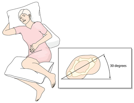 Position in bed to prevent the development of pressure ulcers. Created in Adobe Illustrator.  EPS 10 Illustration
