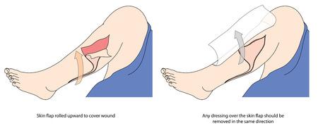 Jak stosować bandaż na pokrycie łzy w skórze, pokazując klapę skóry i opatrunek.