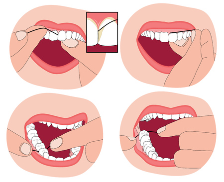 dental health: Flossing teeth, showing the floss material between the teeth and into the surrounding gum.  Illustration