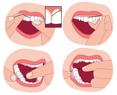 Usar hilo dental los dientes, que muestra el material hilo dental entre los dientes y en la encía circundante. Ilustración de vector