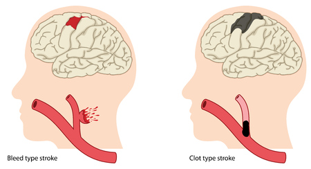 Two causes of stroke, a bleed type stroke and a clot type stroke.  Illustration