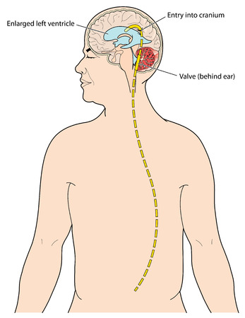 drain: Ventriculoperitoneal shunt to drain excess CSF from the brain in cases of hydrocephalus. Created in Adobe Illustrator.