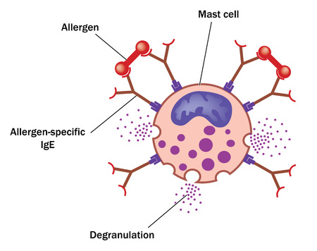 Allergen bound to allergen specific IgE on a mast cell resulting in degranulation of vasoactive amines. Created in Adobe Illustrator.  EPS 10.
