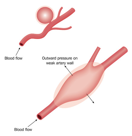 bio medicine: Berry aneurysm and generalized aneurysm in arterial wall.